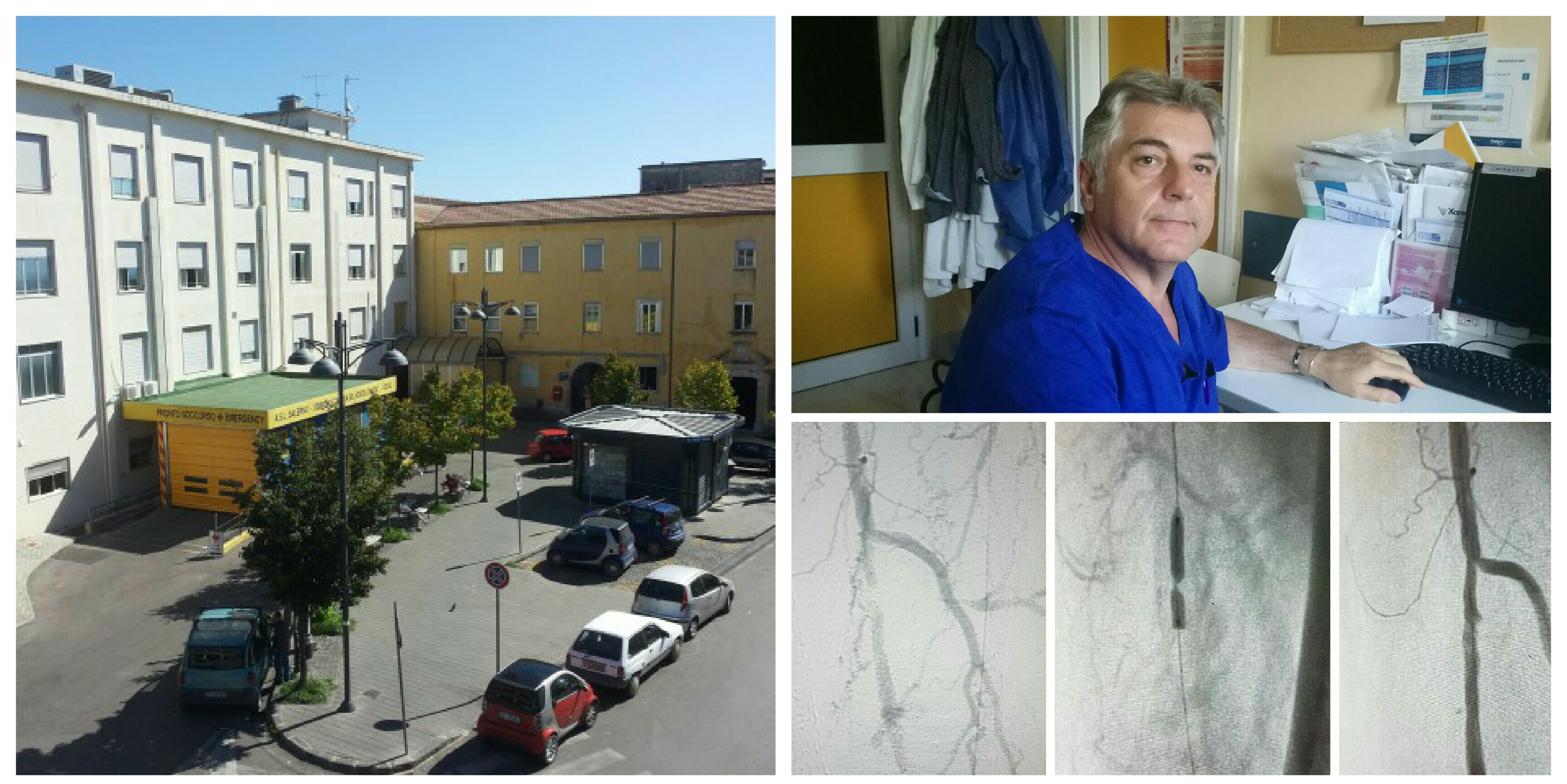 Ospedale Eboli-Giuseppe Bottiglieri-arteria-prima-durante-dopo-intervento